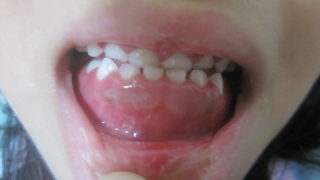 子供がヘルペス性歯肉口内炎になった体験談ー症状、対処法