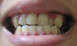 ヘルペス性歯肉口内炎 画像
