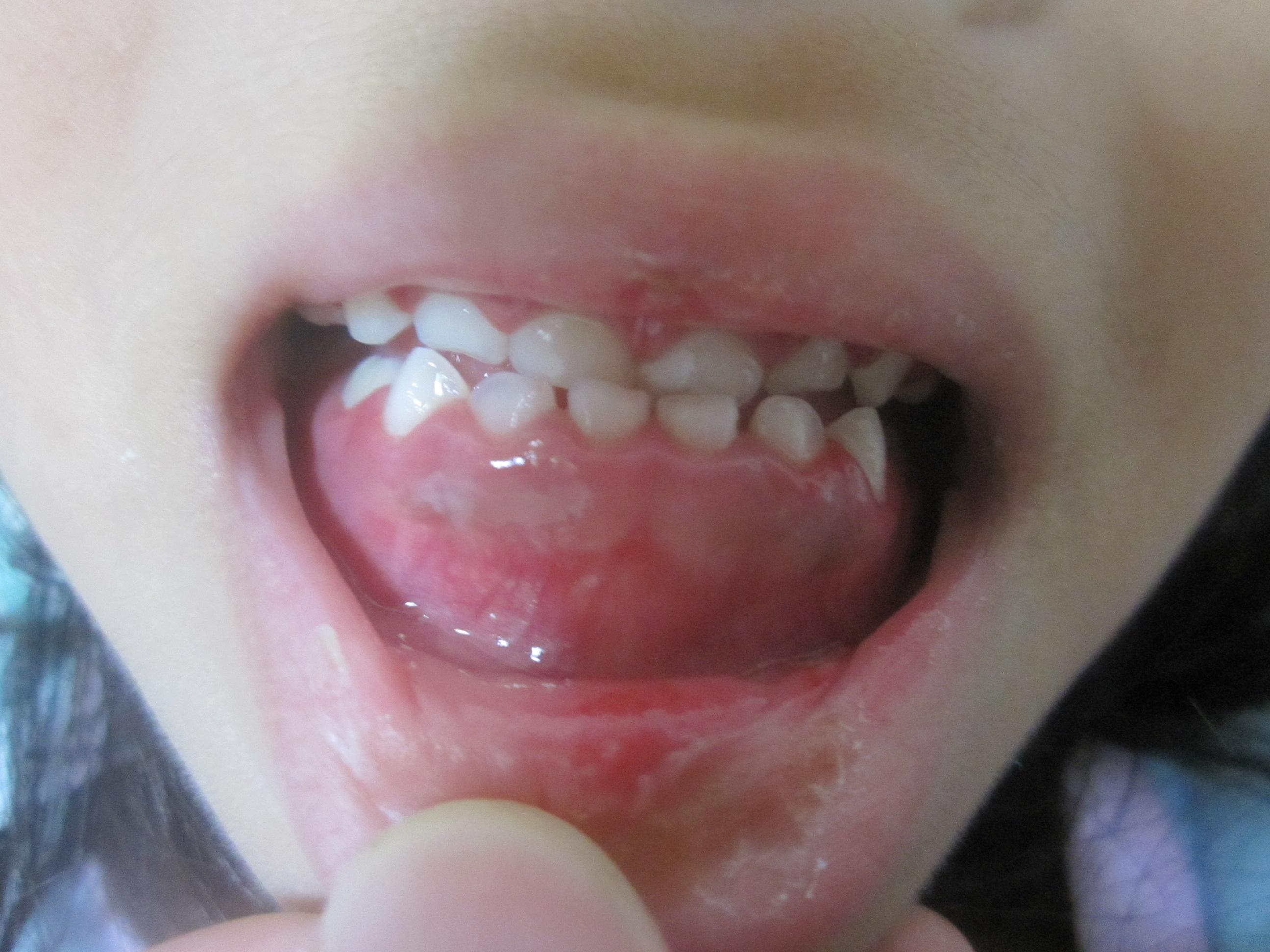 ヘルペス性歯肉口内炎 子供 画像